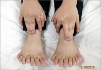 Chinese_boy_with_30_fingers_and_toes